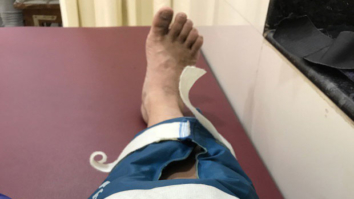 Arshad Warsi injures his leg during a dance sequence and here is what he said